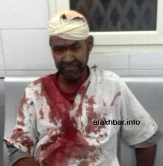 أحدى ضحايا الوزير ولد الشيخ ـ وهو مجنون مقعد مريض ـ