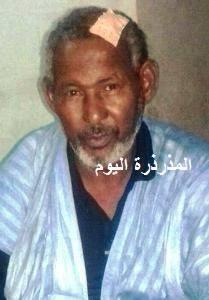 الفنان ولد أحمد لول بعد ان تلقى العلاج منأثر اعتداء اللصوص