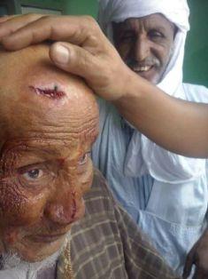شائب تم الإعتداء علي لمجرد لون بشرته