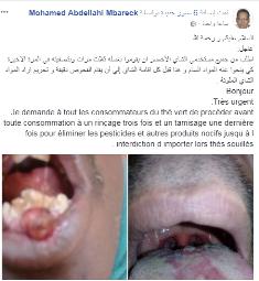 تحذير الدكتور محمد عبدالله