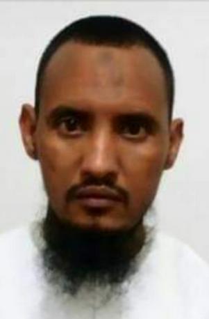 المواطن / سيدي المختار الذي تعرض للاختطاف و التعذيب