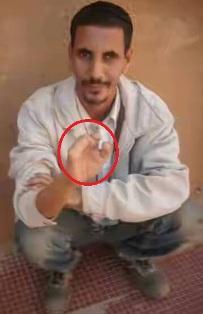 المواطن الشيخ ولد محمد الذي بترت اصابعه شركة MCM